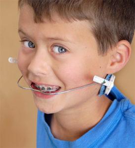 Maska ortodontyczna - po co to?