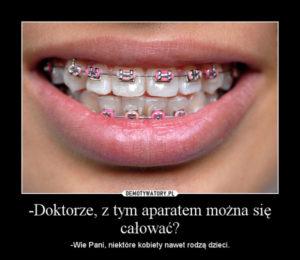 Fakt czy mit? Aparat ortodontyczny w 8 punktach